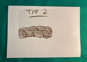 Bristol Stool Form Scale Typ 2