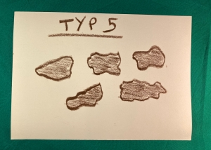 Bristol Stool Form Scale Typ 5